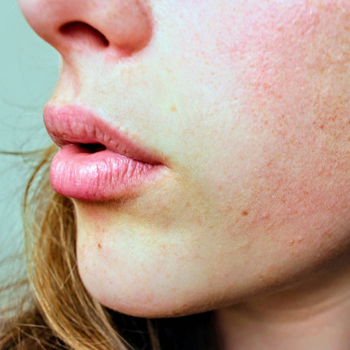 Acne is a problem I think many Americans face in their lives. Sometimes it's just your age, but persistent acnes exists too. Medications and treatments aside, just feeling good about the skin you're in is important, and there are ways to improve your sense of health and well being.